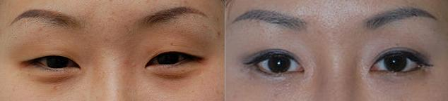Blepharoplasty, before and after