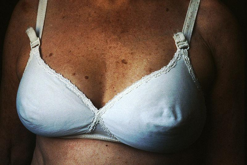 Breast growth video