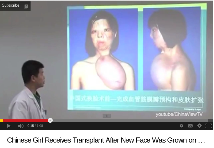 Chinese Teenager Grows New Face On Chest