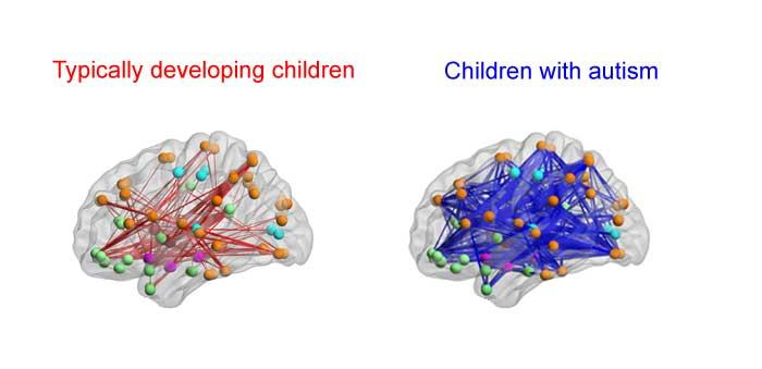 Autism Brain Circuit That Controls >> Kids With Autism Have Hyperconnected Brain Areas Could Brain