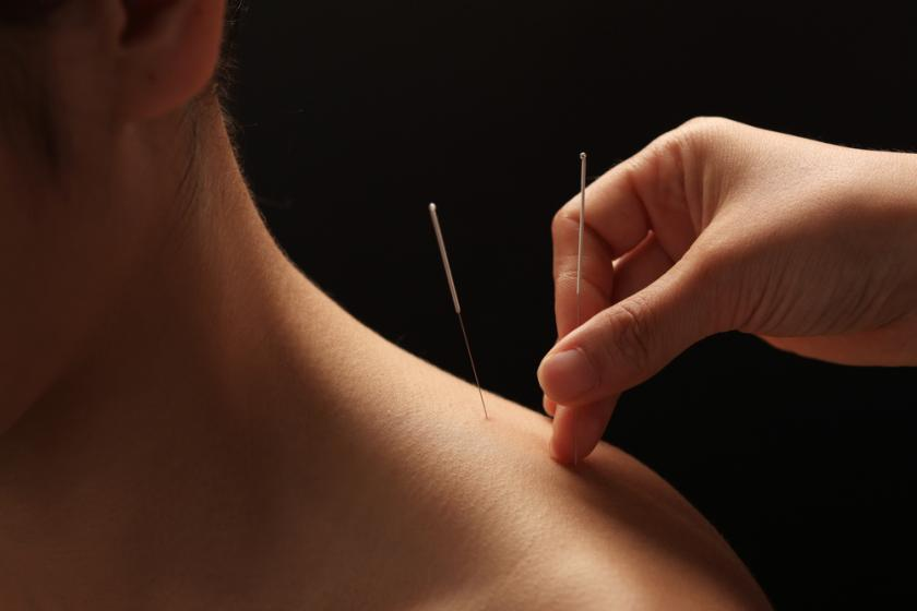 Acupuncture Can Reduce Inflammation And 'Saves Lives,' But ...