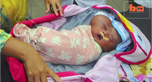 Baby Born With 'Heart-Shaped Head' Has Growing Tumor On Face, But ...