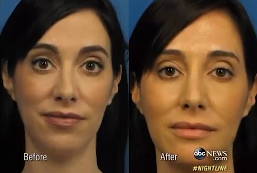Woman spends $15K on plastic surgery for perfect selfie
