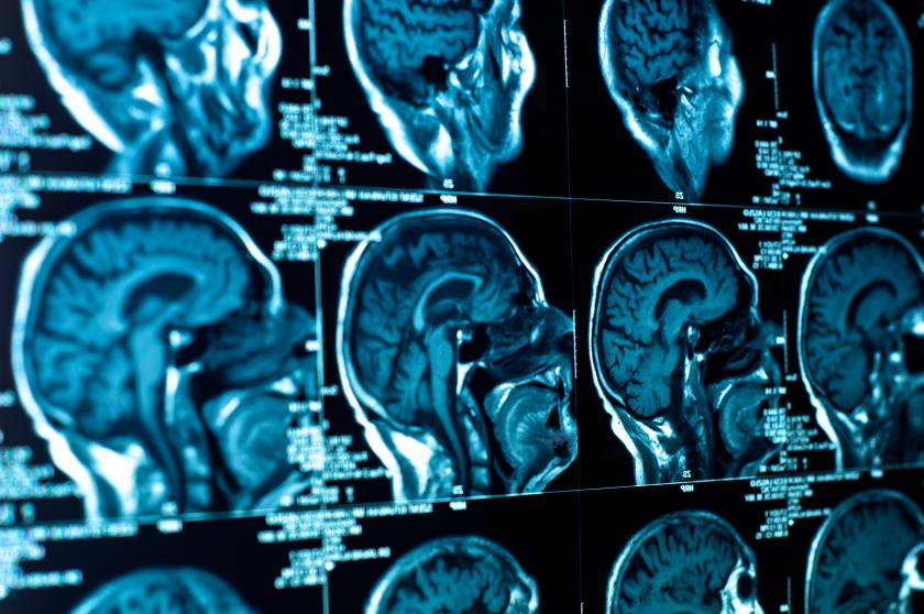 MRI Scan Detects ADHD In Childrens Brain May Mean Earlier And More