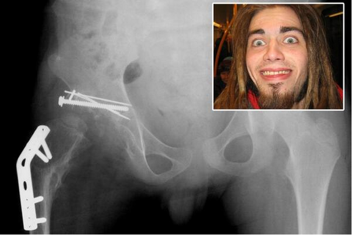 Guy eats his own hip