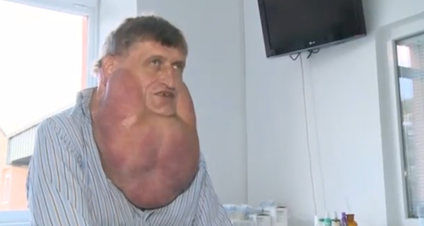Slovakian man gets 13-pound facial tumor removed