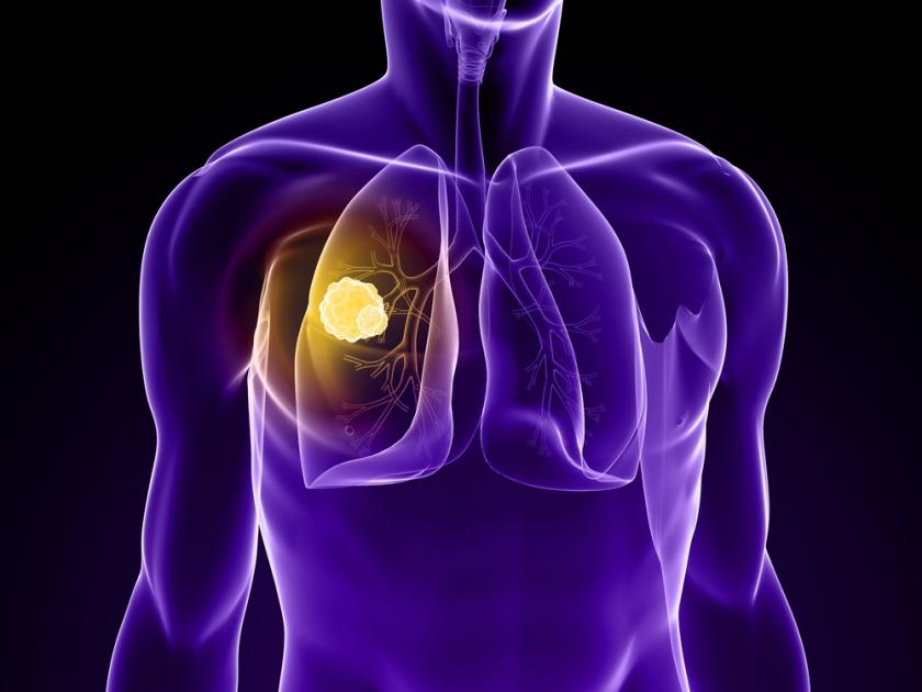 Experimental Drug Gives Hope To Lung Cancer Patients
