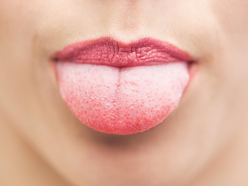 Tongue Tied What Your Tongue S Appearance Can Tell You About Your
