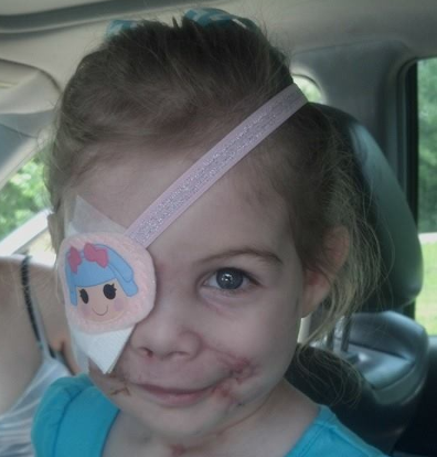 Toddler gets kicked out of KFC for pit bull attack