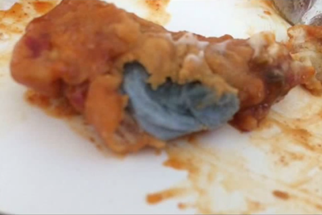 7 Year Old Ate Kfc Chicken Nugget With Fried Kitchen Towel Inside