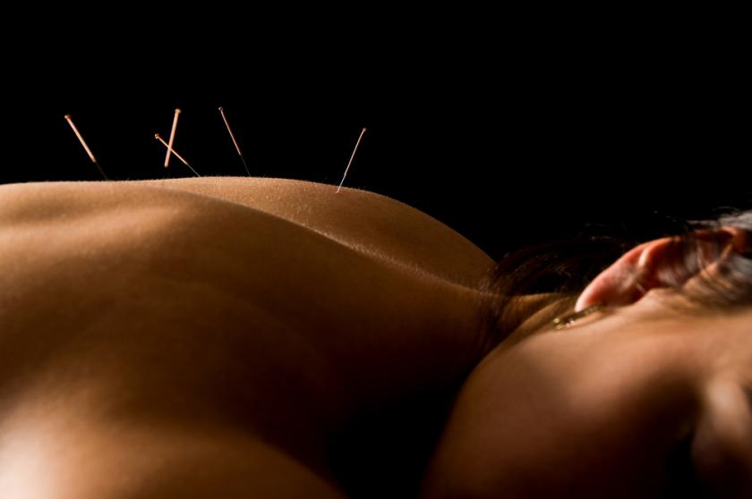 Acupunture May Relieve Hot Flash Symptoms For Menopausal Women