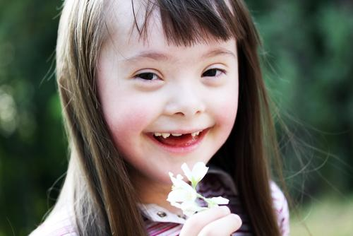 Abnormalities In Cells That Cause Down Syndrome May Be