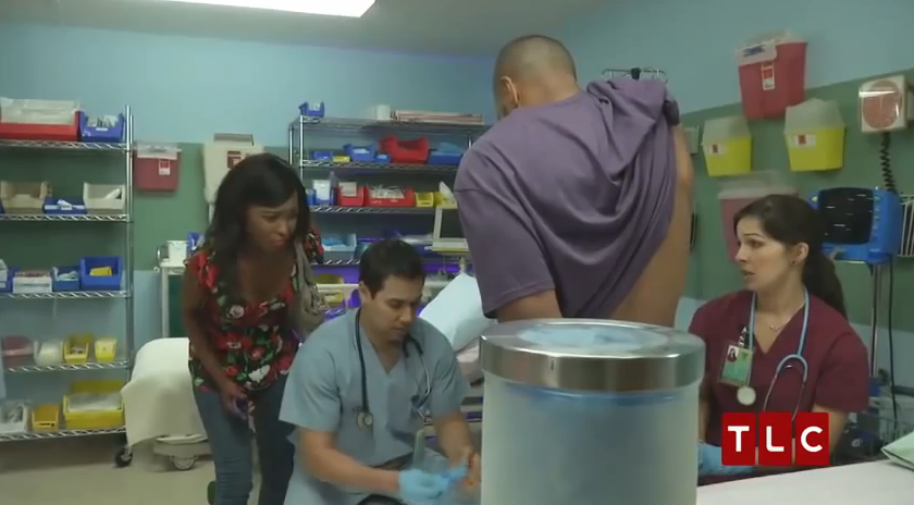 Man superglues hand to penis in the ER