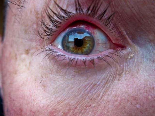 d2161f69d30 Improper contact lens care can lead to serious health complications. Flickr