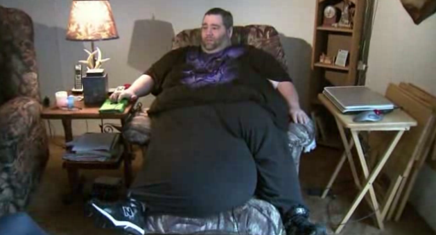 Man with 100-pound scrotum to have surgery for groin mass removal