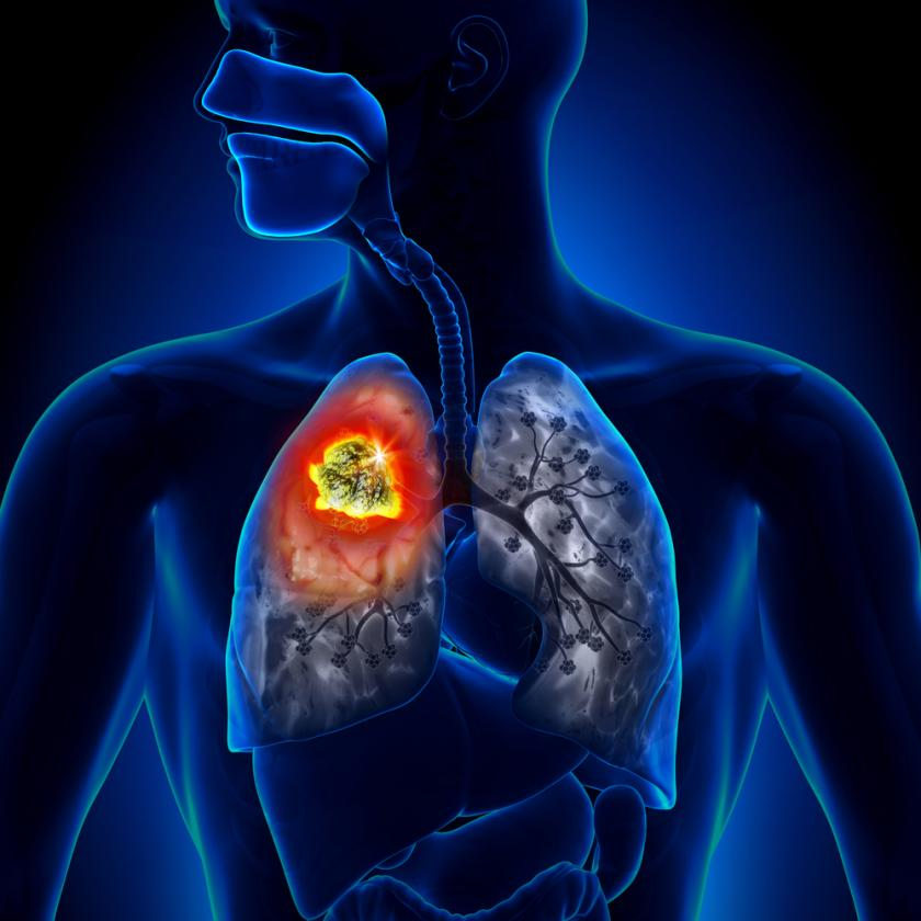 a study of lung cancer disease Recent research has suggested that lung cancer affects women in a different way  to men this affects the impact of the condition on the body as.
