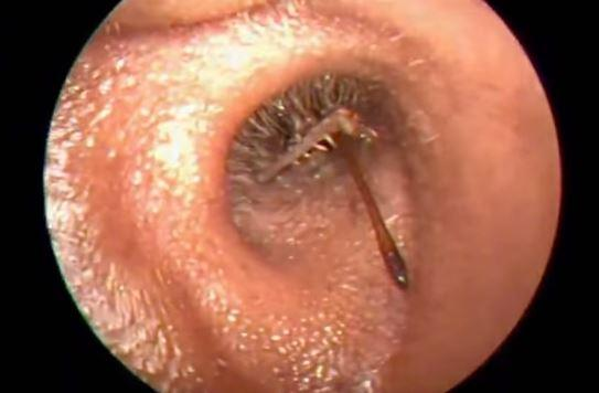 7 Living Things Found Inside The Ear Canal That Will Make You Squirm