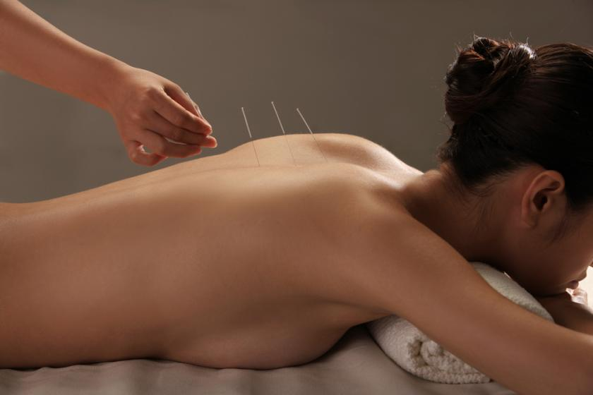 Doctor putting acupuncture needles on woman's shoulder