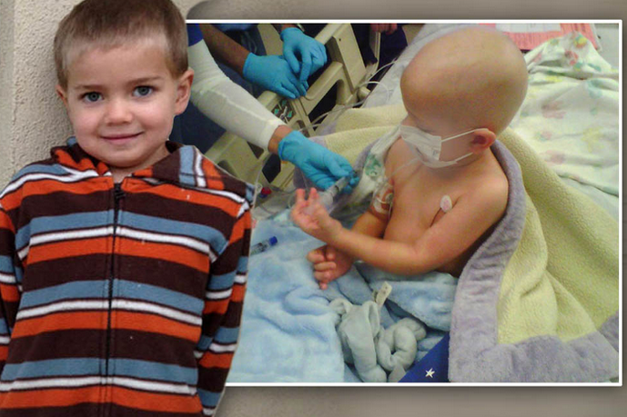 Rhett is at high risk for measles after chemotherapy for leukemia