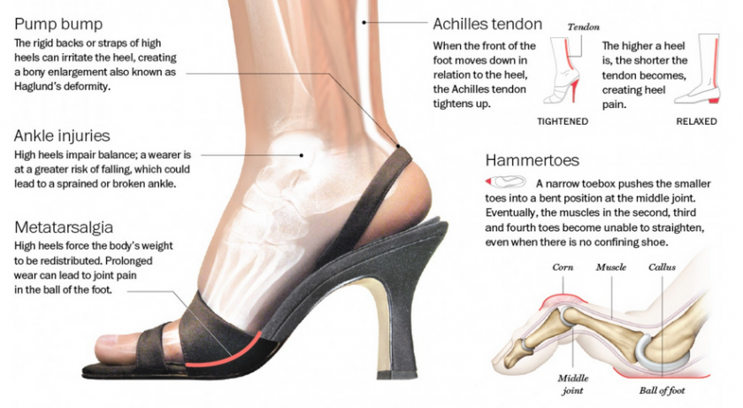 The Damage that High Heels Can Cause to the Feet