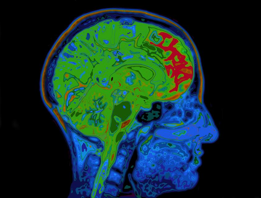 Brain Scans Show Ocd And Schizophrenia Share Common Loss Of Gray Matter