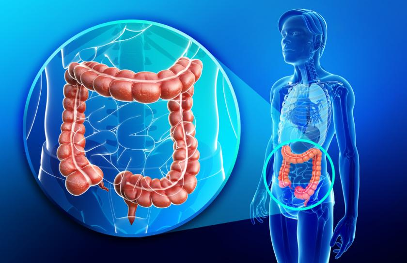 Colon Cancer Patients With Left Sided Tumors Have Better Survival Rates Than Patients With Right Sided Tumors