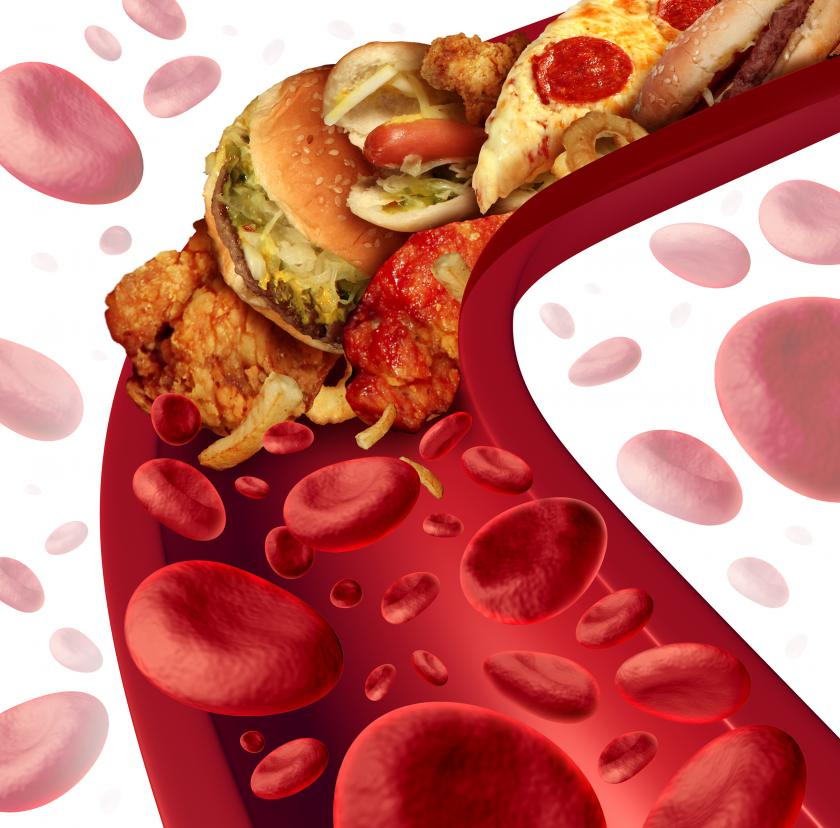 Eating Out Hurts Your Heart Health 5 Little Known Causes
