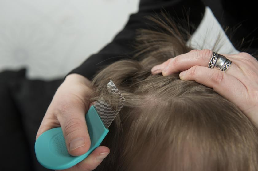 lice on a child's head