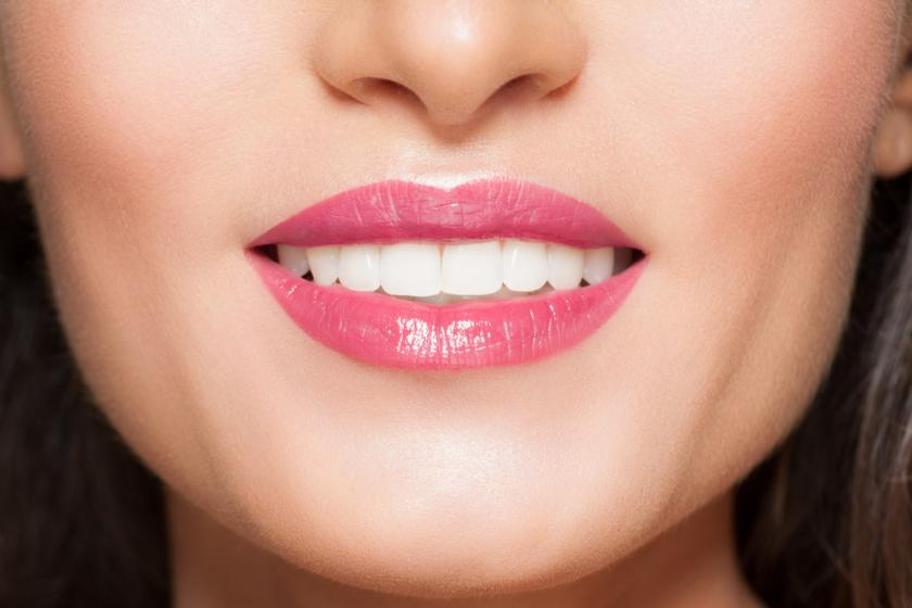 Close-up of smile with white beautiful healthy teeth