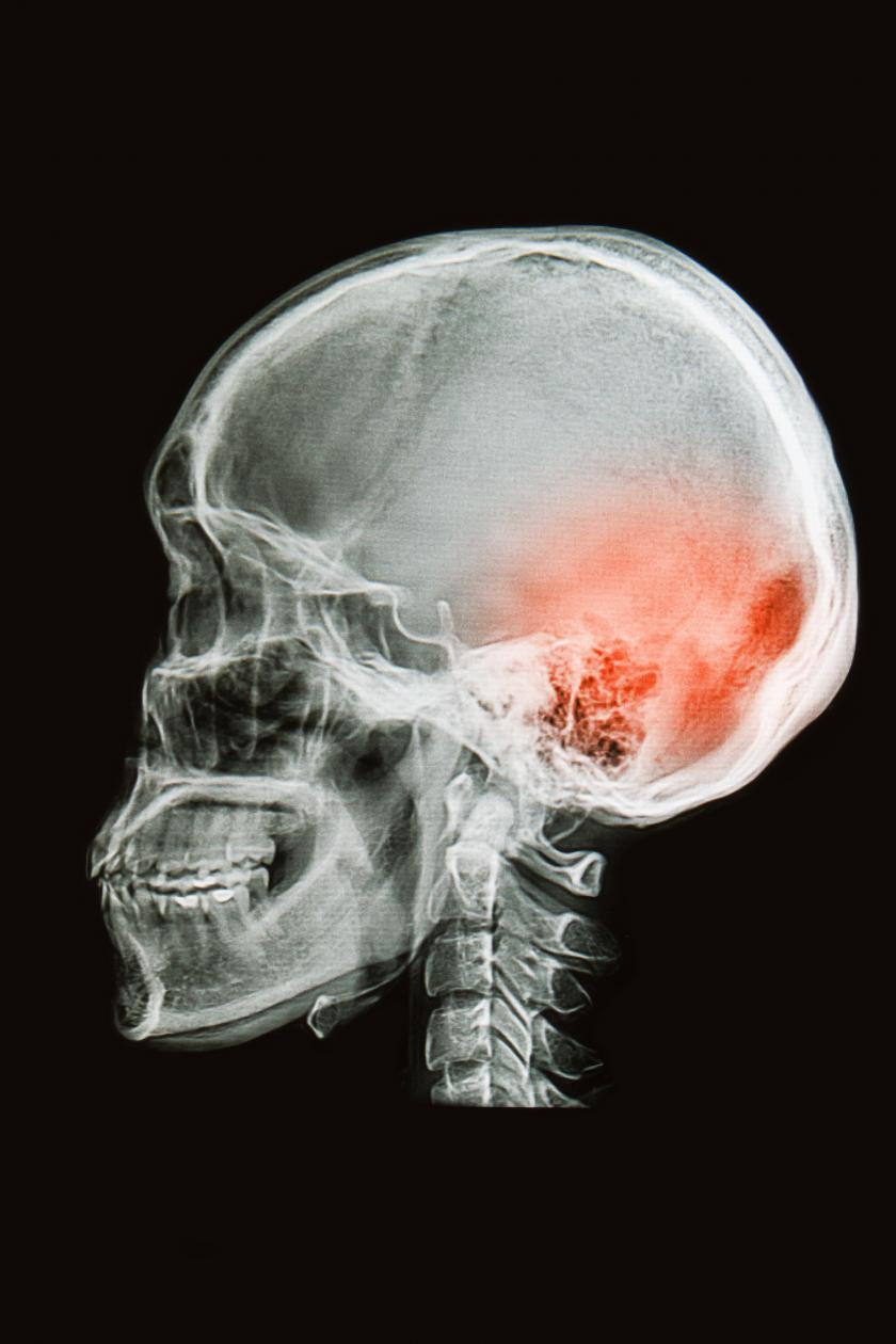 Dating sites for people with brain injuries