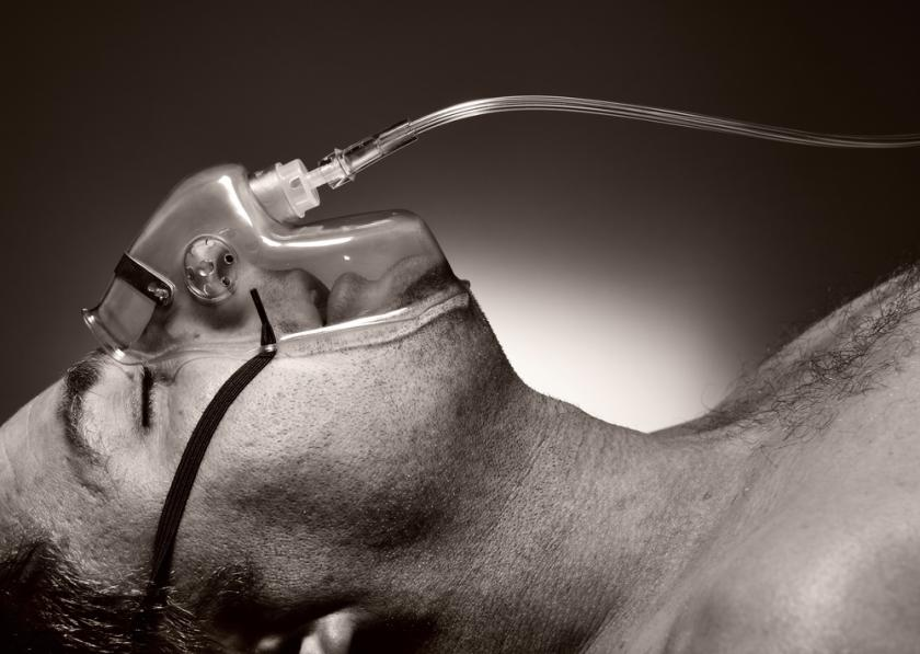 Nitrous Oxide Side Effects: EEG Test Shows Laughing Gas Alters