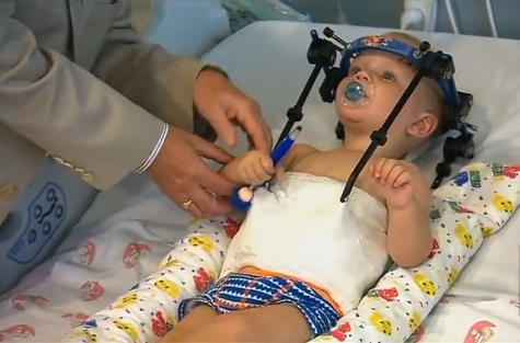 Toddler Internally Decapitated In Car Accident Has Skull