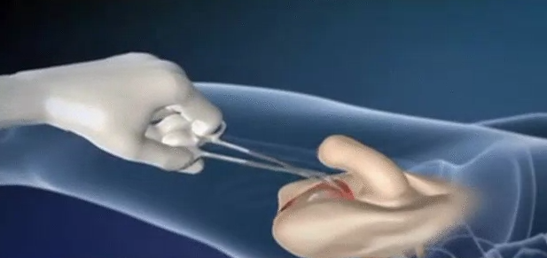 Male-To-Female Sex Reassignment Surgery Watch A -3903