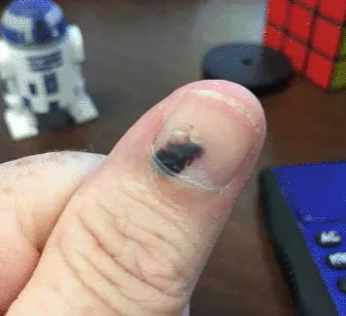 Blood Blister In Broken Nail Grows Out And Heals Over 5 Month Period