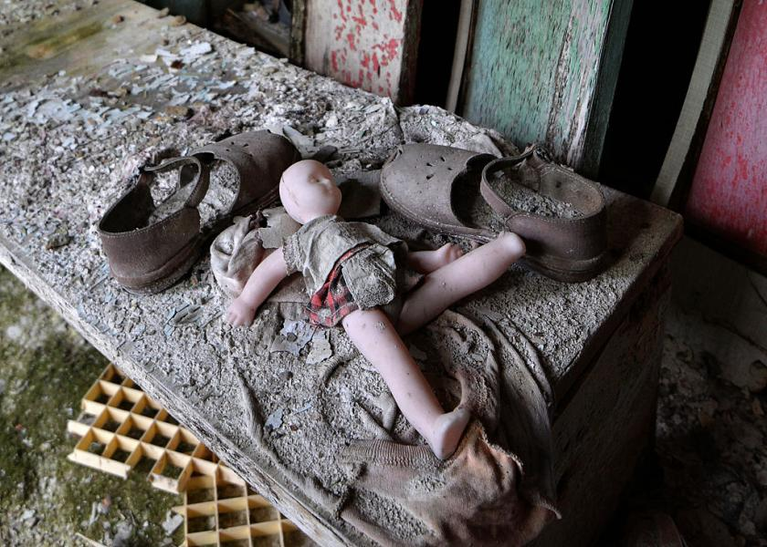 Birth Defects From Radiation Chernobyl