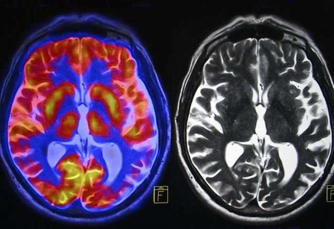 Mri scans of human brain show impact of alcohol and tobacco brain scans ccuart Choice Image