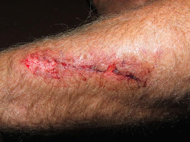 Is My Wound Infected? Pus And Other Signs To Watch For