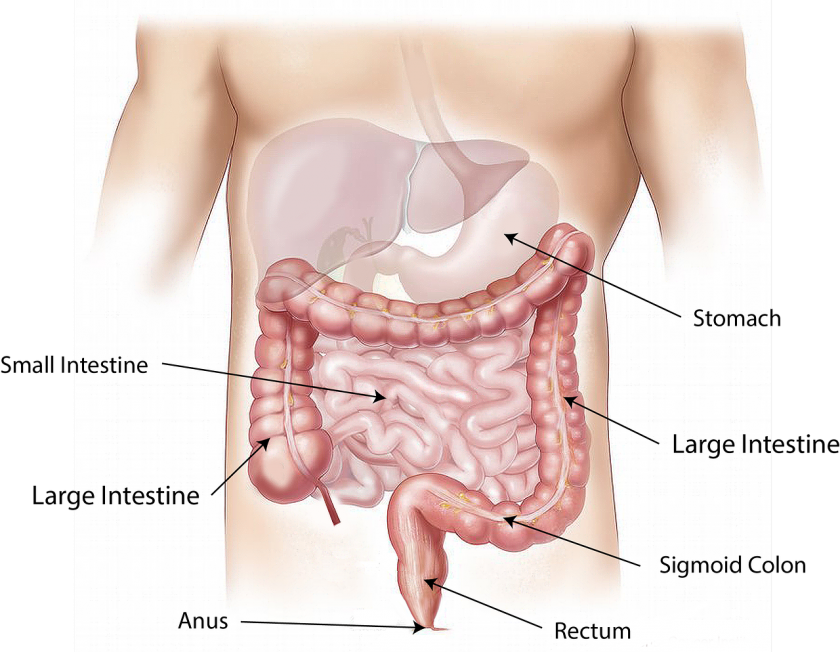 colon cancer symptoms and risks things to know from bleeding to