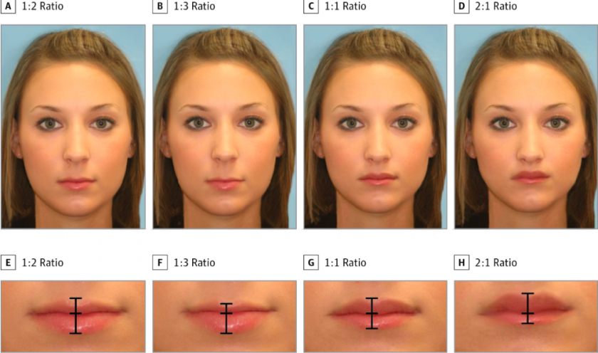 The Most Beautiful Female Lips Study Finds 1 2 Ratio Is