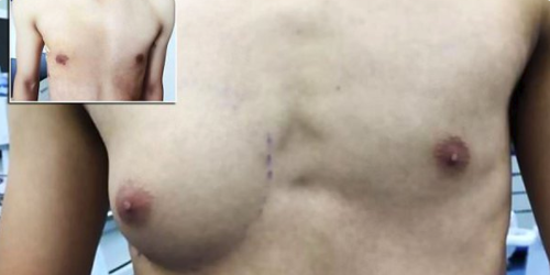 Man grows A-Cup breast
