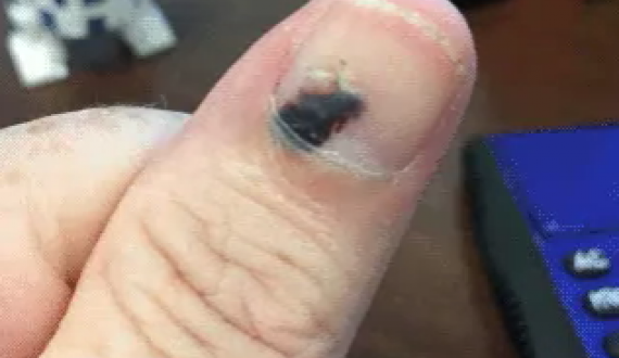 Blood Blister In Broken Nail Grows Out And Heals Over 5 Month Period How Does The Thumb Regenerate