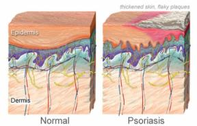 Severe psoriasis linked to major adverse cardiovascular events