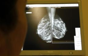 woman undergoes a mammogram, breast cancer