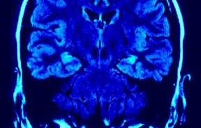 brain scan, right and left hemisphere