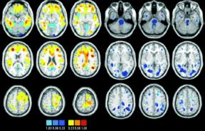 Bipolar Disorder Diagnosis May Soon Include MRI Test