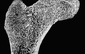 3-D printing of artificial bone