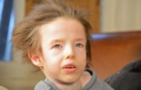 Menkes Disease Is A Fatal Genetic Disorder: Short Documentary Offers Families Help And Hope