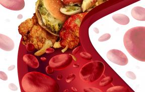 Dining And Blood Pressure