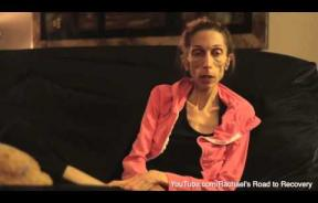 California Woman With Anorexia, Rachael Farrokh, Makes Public Appeal To Help Save Her Life