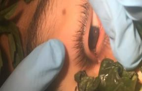 Doctors Use Basil Leaves To Remove Suspected Botfly Larvae From Boy's Left Eye After A Month